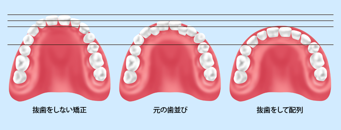 矯正治療における抜歯の必要性について